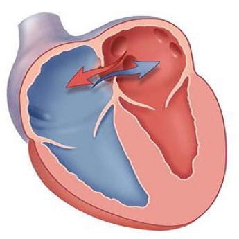Дефект межпредсердной перегородки – врожденный порок сердца, с которым можно жить.