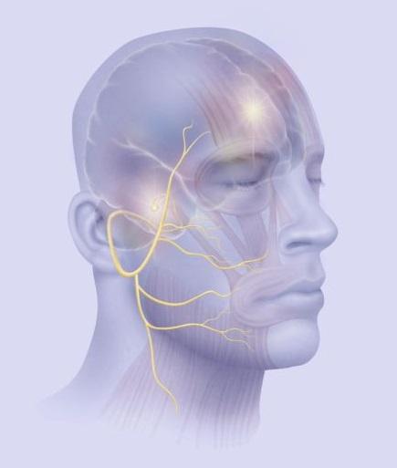Защемление лицевого нерва симптомы