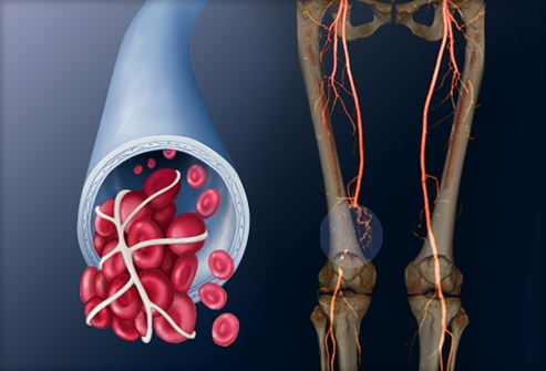 Тромбоз глубоких вен нижних конечностей: симптомы и признаки, методы лечения