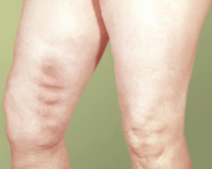 Тромбофлебит это наследственное заболевание