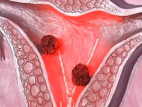Лечение рака матки в Израиле: цены, отзывы, стоимость. Рак матки Израиль: клиника, центр, больница, симптомы, стадии