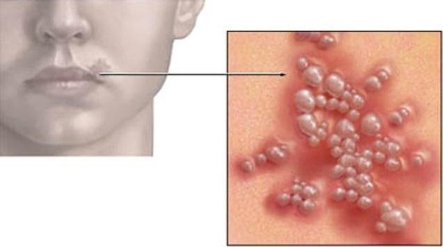 Герпес на губах – причины и лечение герпеса на губах у детей и взрослых