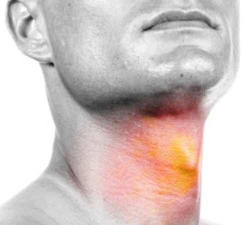 Симптомы онкологии горла или гортани