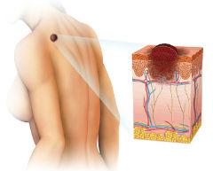 Бальзамический рак кожи лечение