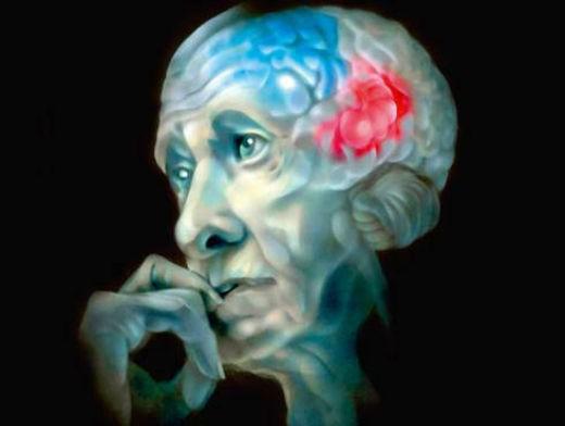 Болезнь Альцгеймера симптомы и признки обзор фактов заболевания