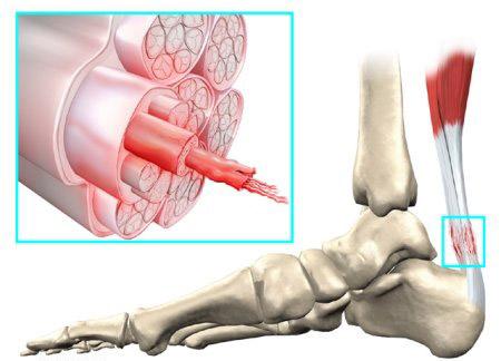 Перонеальный тендинит симптомы и лечение