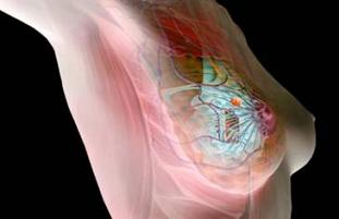 Мастопатия на маммограмме - Мастопатия