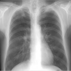 Рентген заключение при обструктивном бронхите