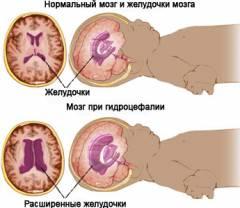 Изображение - Причины повышения внутричерепного давления у женщин sm_077795001415283933