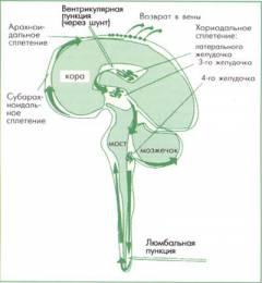 Изображение - Причины повышения внутричерепного давления у женщин sm_378021001415283979