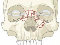 Как оказать первую помощь при переломе носа