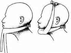 polismed.com, перелом, челюсти., причины,, симптомы,, виды,, первая, медицинская, помощь, и, реабилитация