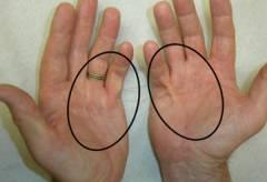 polismed.com, перелом, пальца, руки., причины,, симптомы,, виды,, первая, медицинская, помощь, и, реабилитация