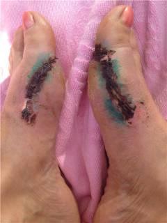 polismed.com, перелом, пальца, ноги., причины,, симптомы,, виды,, первая, медицинская, помощь, и, реабилитация