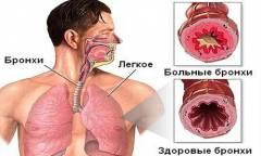 polismed.com, эмфизема, легкого., причины,, симптомы,, признаки,, диагностика, и, лечение, патологии.