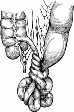 polismed.com, вздутие, живота, (повышенное, газообразование)., причины,, диагностика, и, лечение, патологии.