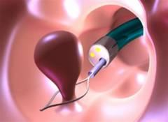 polismed.com, полип, прямой, кишки., причины,, симптомы,, диагностика,, лечение, и, профилактика