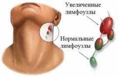 polismed.com, болит, челюсть., боли, под, челюстью,, боль, отдает, в, ухо,, воспаленные, челюстные, лимфоузлы,, боли, при, открывании, рта,, щелкает, челюсть., что, делать, при, этих, симптомах?