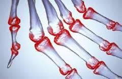 polismed.com, болят, суставы, пальцев, рук., причины,, виды, болей., патологии,, вызывающие, болезненность., помощь, при, болях, в, суставах, пальцев, рук
