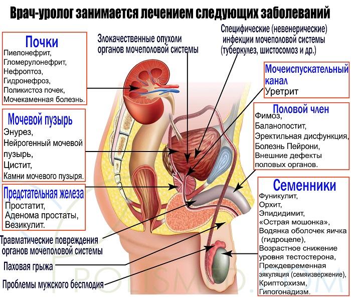 Какие болезни лечит уролог