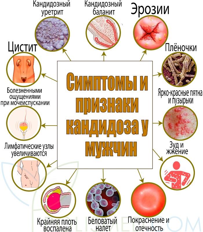 Симптомы и признаки кандидоза