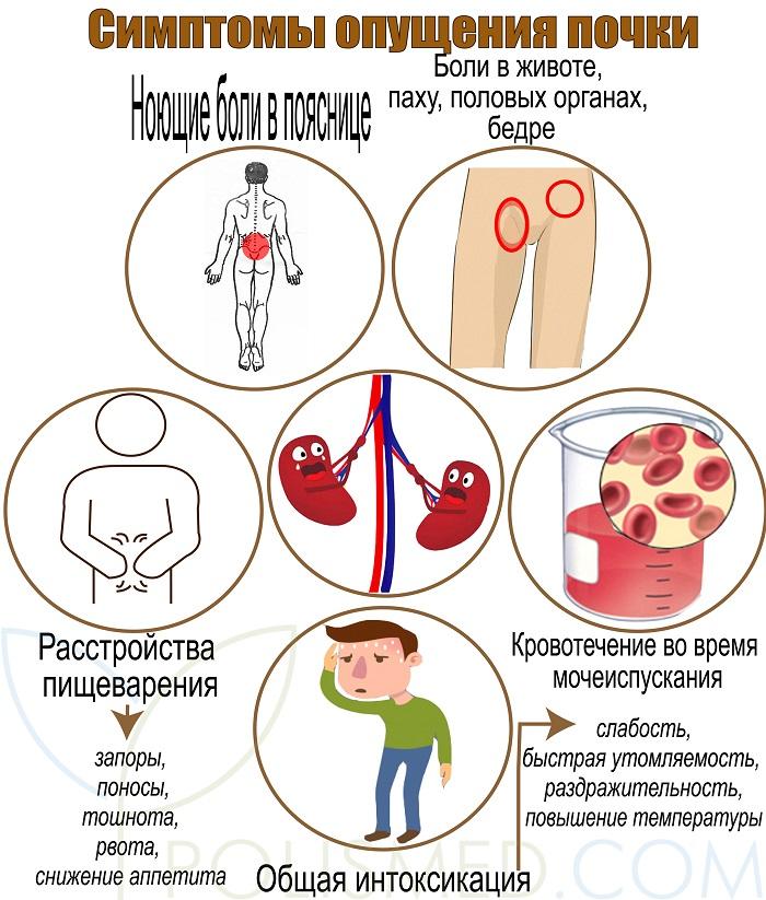Симптомы опущения почек