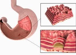 Осложненная язва желудка симптомы