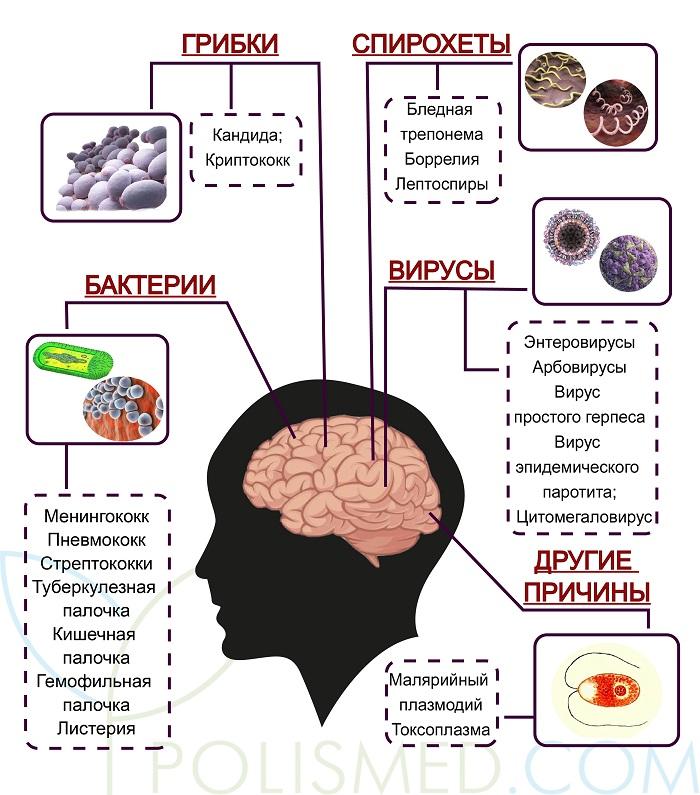 polismed.com, менингит., причины,, симптомы,, диагностика, и, лечение