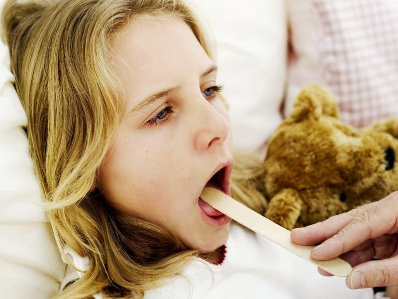 Ангина  лечение признаки возможные осложнения после заболевания