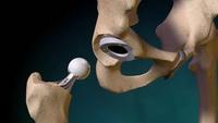 Изображение - Причины заболевания артрозом суставов artroz12