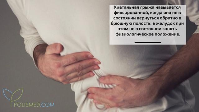 polismed.com, грыжа, пищеводного, отверстия, диафрагмы, (хиатальная, грыжа)., причины,, симптомы,, диагностика, и, лечение, патологии