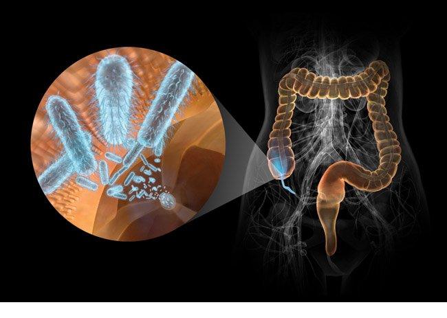 Чем лечить бактериальный вагиноз