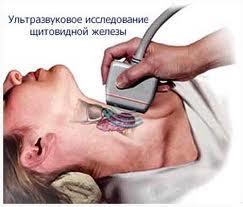 polismed.com, диффузный, токсический, зоб, (дтз),, гипертиреоз., симптомы,, диагностика,, лечение, и, профилактика, патологии.