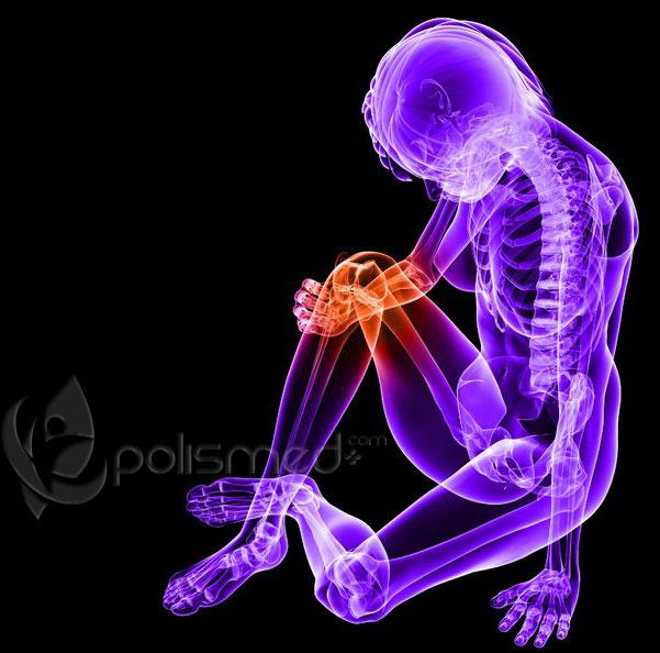 Артроз суставов - симптомы, стадии.