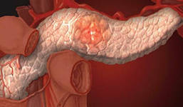 как похудеть после гормонального лечения