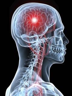 диагностика инсульта головного мозга
