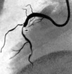 Как проводится коронарография сосудов сердца