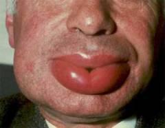 аллергия на молочку