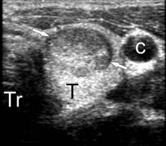 жидкость в щитовидной железе по узи