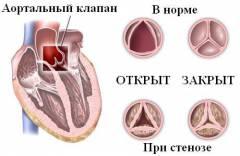 Эндокардит. Симптомы эндокардита. Лечение эндокардита.