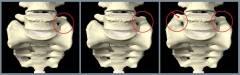 Защемление нерва в ноге: симптомы и лечение