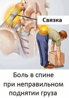 Люмбалгия симптомы