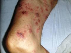 миеломная болезнь лечение