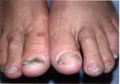 грибковое поражение ног