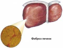 фиброзные изменения в печени