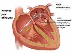 сердцебиение неритмичное