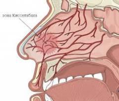 Як викликати кровотечу з носа