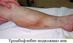 чем лечат тромбофлебит на ногах