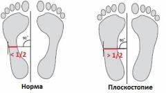 развитие плоскостопия у взрослых