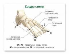 плоскостопие стадии